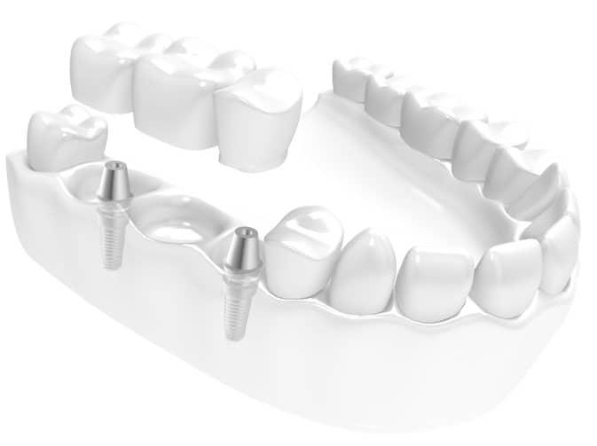 2 implantat med treledds implantatbro